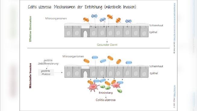 Colitis ulzerosa - Krankheitsbild und Ernährungstherapie