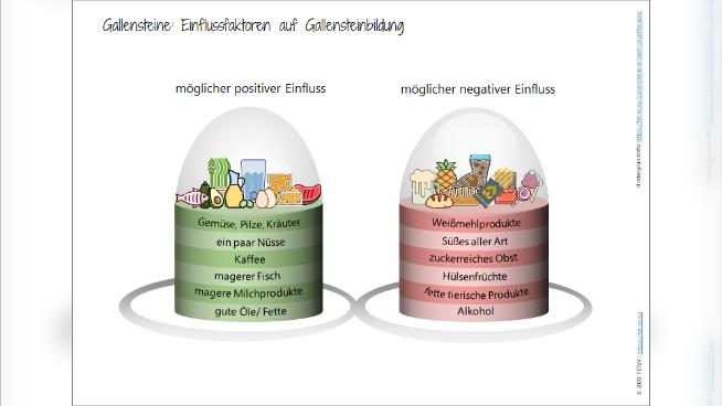 Gallensteine - Einflussfaktoren