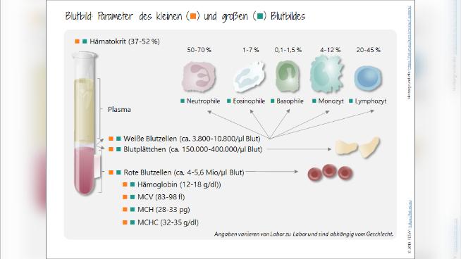 Blutbild: Parameter des kleinen und großenBlutbildes
