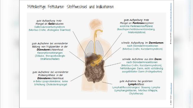 Mittelkettige Fettsäuren (MCT) - Ernährungstherapeutische Aspekte