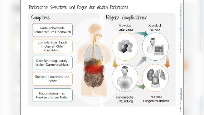 Pankreatitis: Symptome und Folgen der akuten Pankreatitis