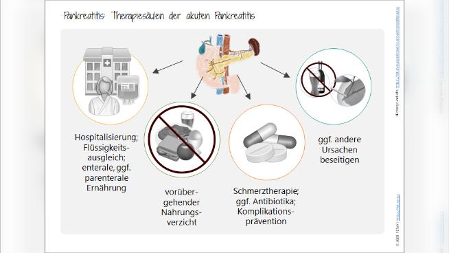 Pankreatitis: Therapiesäulen der akuten Pankreatitis