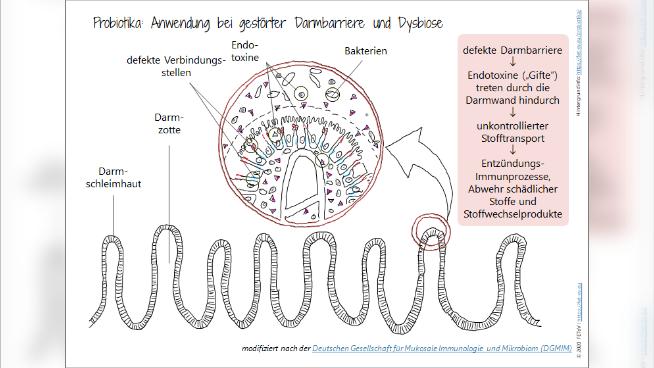 Probiotika: Anwendung bei gestörter Darmbarriere und Dysbiose